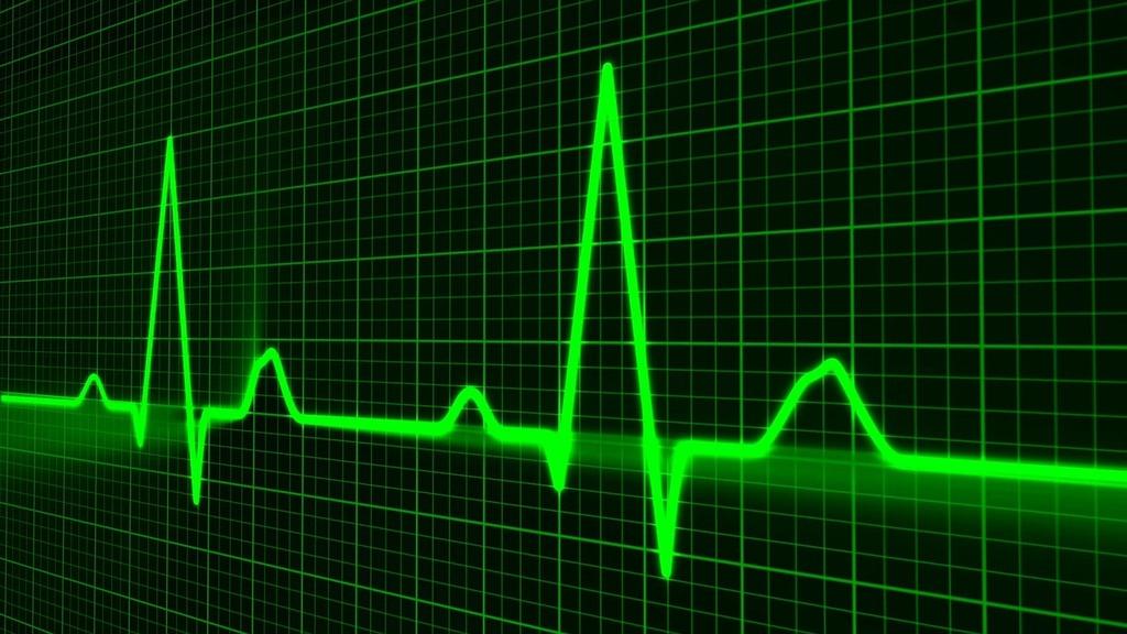 pulse-trace-healthcare-medicine-heartbeat-6fc6b5-1024.jpg
